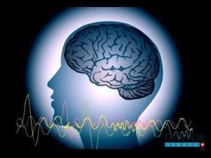 Глубокая электростимуляция головного мозга