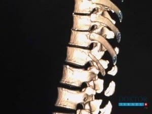 Лечение перелома позвоночника в Израиле