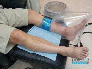 Новейшее лечение спасает больных диабетом от ампутации
