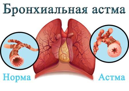 Астма анатомия