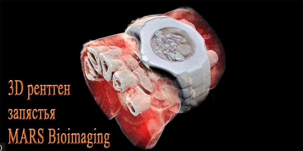 MARS Bioimaging