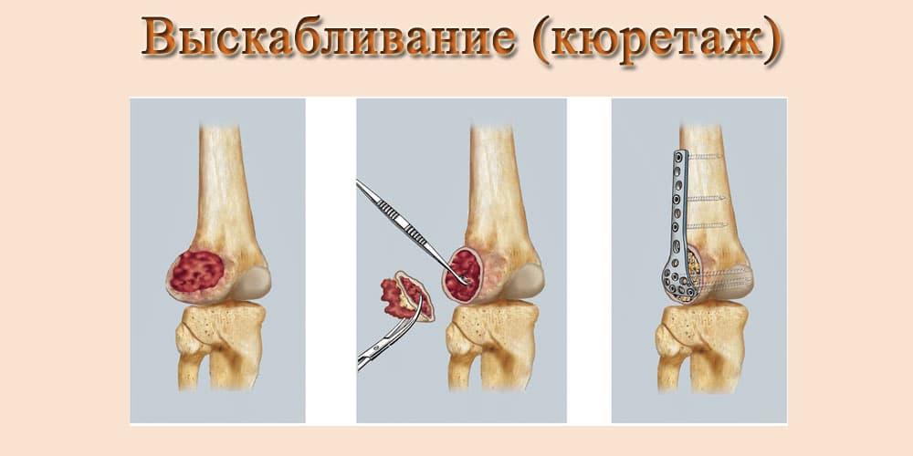 Лечение рака костной ткани