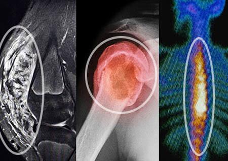 Разновидности рака костей