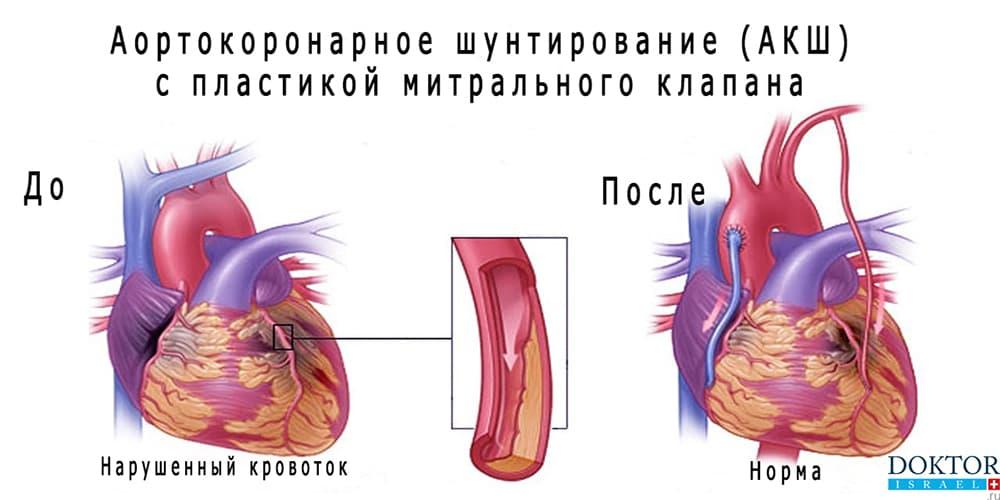 Эффект аортокоронарного шунтирования