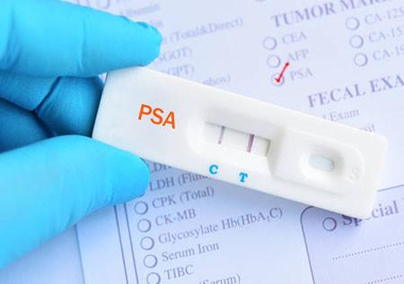 PSA положительный результат тест