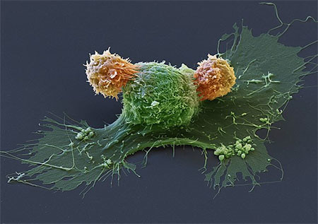 CAR Т-клетки и клетка рака