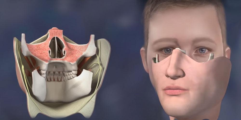Реконструкция челюсти в Израиле