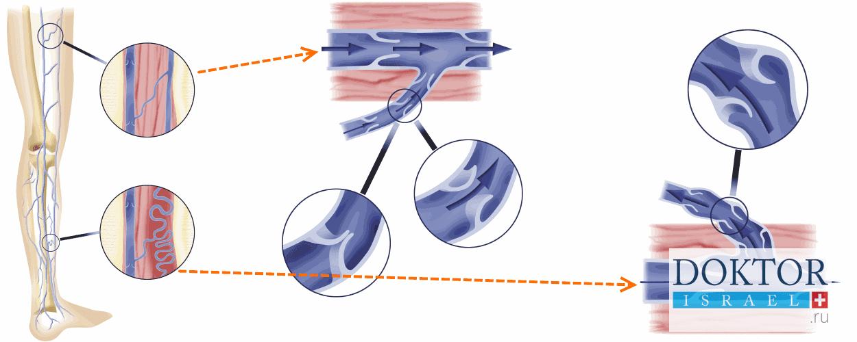 Варикозное расширение вен