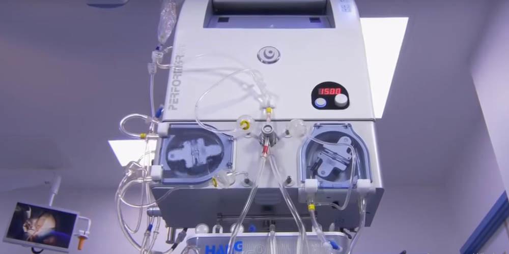 Аппарат для гипертермической интраперитонеальной химиотерапии