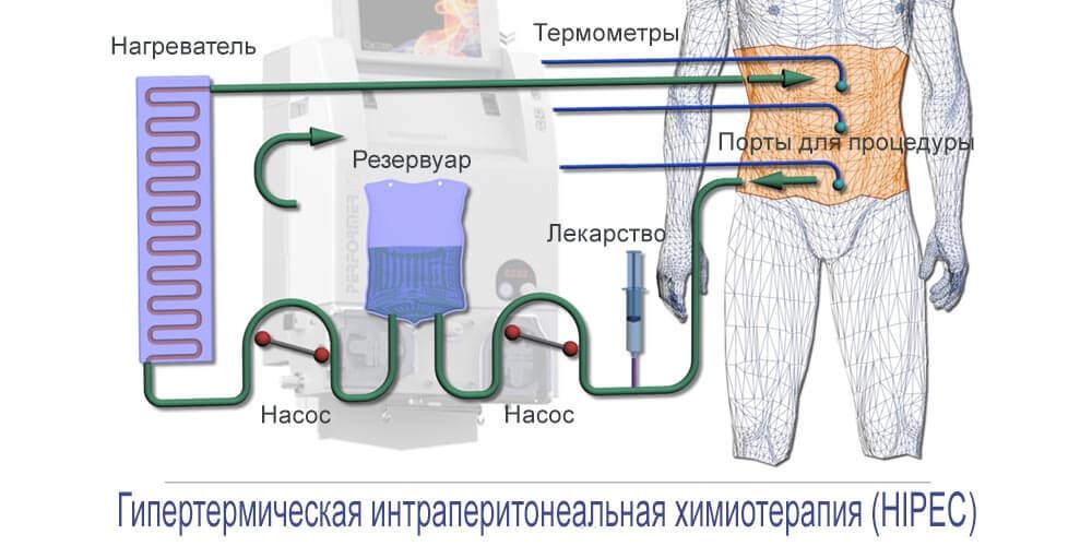 Инновационный метод химиотерапии при лечении рака желудка