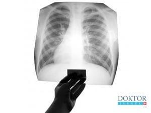 Лечение туберкулеза в Израиле