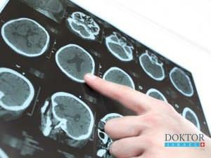 Лечение бокового амиотрофического склероза в Израиле