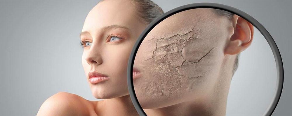 Редкое генетическое заболевание кожи