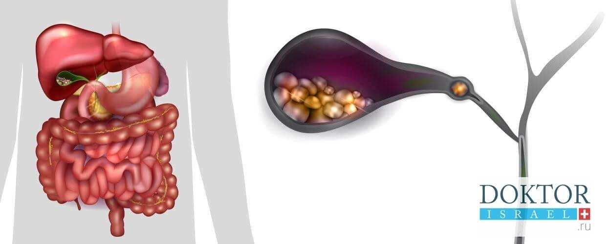 Рак желчевыводящих путей — Лечим печень