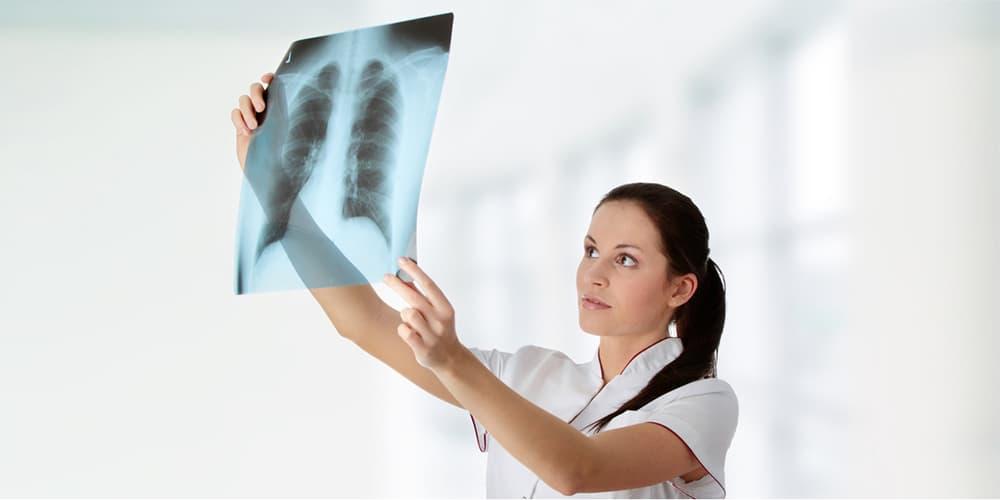 Рентген бронхов при саркоидозе width=