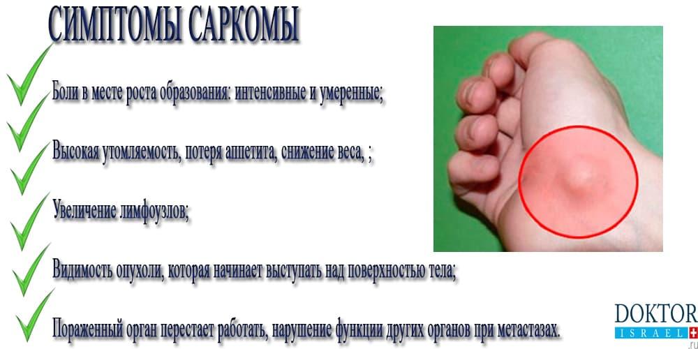 Симптомы саркомы