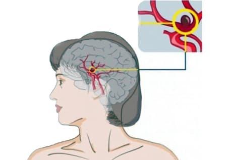 Аневризма головного мозга расположение