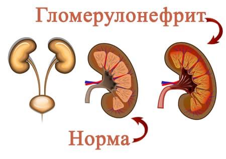 Гломерулонефрит: норма и патология