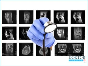Артроскопия Израиле