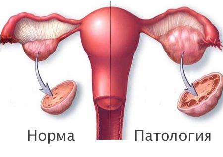 Схематическое изображение яичников в норме и с аномалией