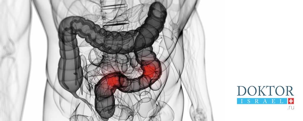 Лечение толстого кишечника в Израиле