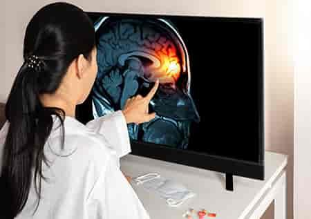 лечение опухолей мозга в израиле