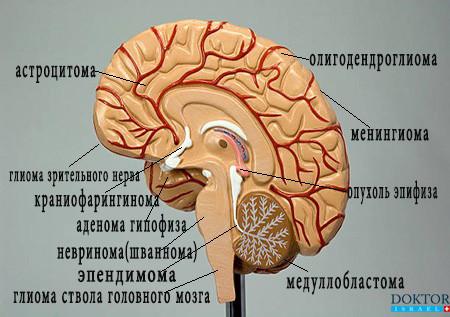 Типы опухолей головного мозга