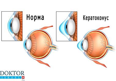 Норма роговицы и кератоконус