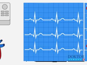 Замена аортального клапана в Израиле - Doktorisrael.ru