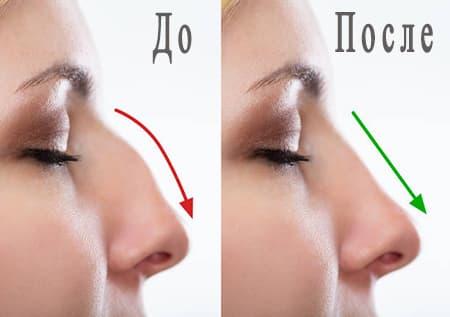Результат изменения формы носа