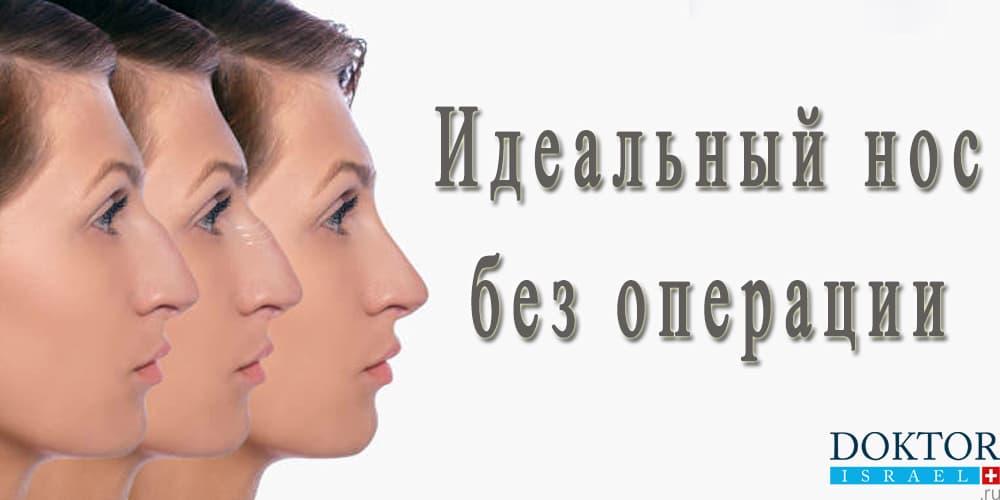 Коррекция формы носа без хирургического вмешательства
