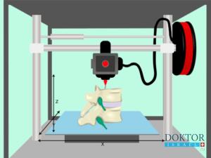 Впервые имплантирован фрагмент позвоночника в 3D печати