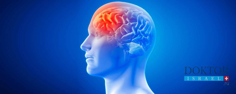 Лечение опухоли головного мозга в Израиле