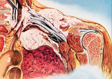 Рак панкоста анатомия в разрезе