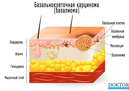 Базалиома проявления