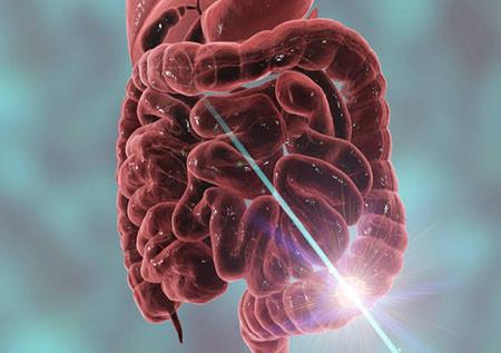Коррекция заболеваний кишечника хирургическим путем