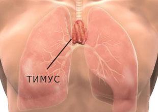 Рак тимуса (вилочковой железы)