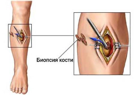 Метод диагностики саркомы Юинга