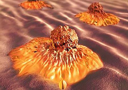 клетка рака кишечника под микроскопом