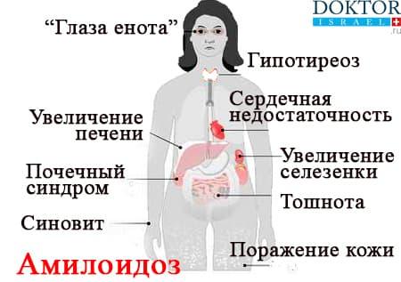 Проявления амилоидоза