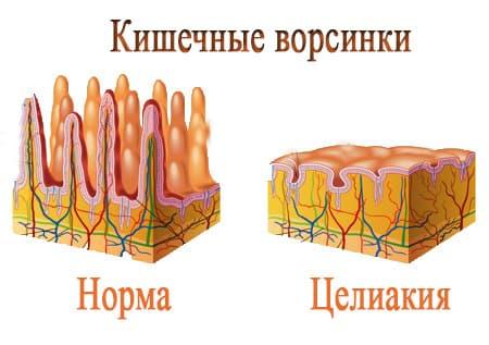 Атрофия кишечника при целиакии