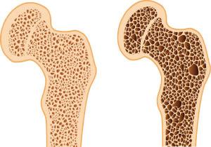 Как выглядит остеопороз