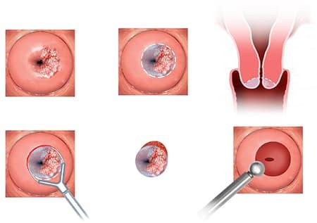 Как выглядит рак шейки матки