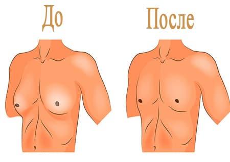 Эффективность операции при гинекомастии