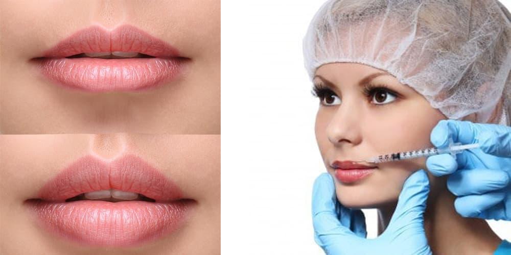 Виды пластики губ