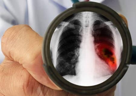 лечение рака легких в израиле цены
