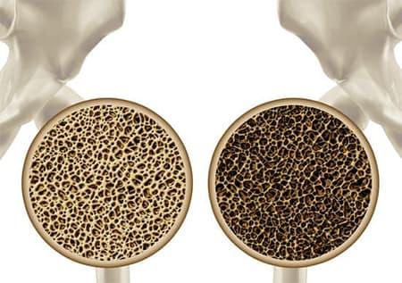 Изменения в костной ткани при остеопорозе