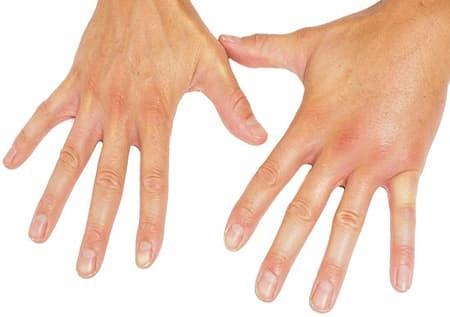 Проявления склеродермии на пальцах