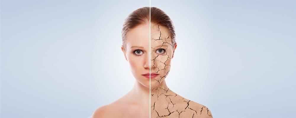 Лечение склеродермии за рубежом